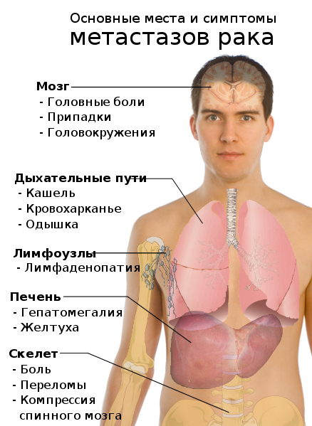 Какой анализ надо сдать на гепатиты